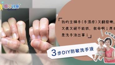 【專欄作家:冬甩媽媽】我的主婦手(手濕疹)又痕又絕不能抓,救命啊!3步DIY防敏洗手液