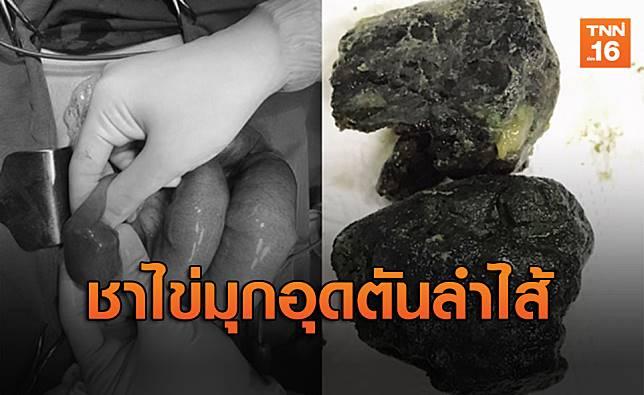 อุทาหรณ์ฺ!หนุ่มเวียดนามเสพติดชาไข่มุกจนลำไส้ตันเกือบตาย
