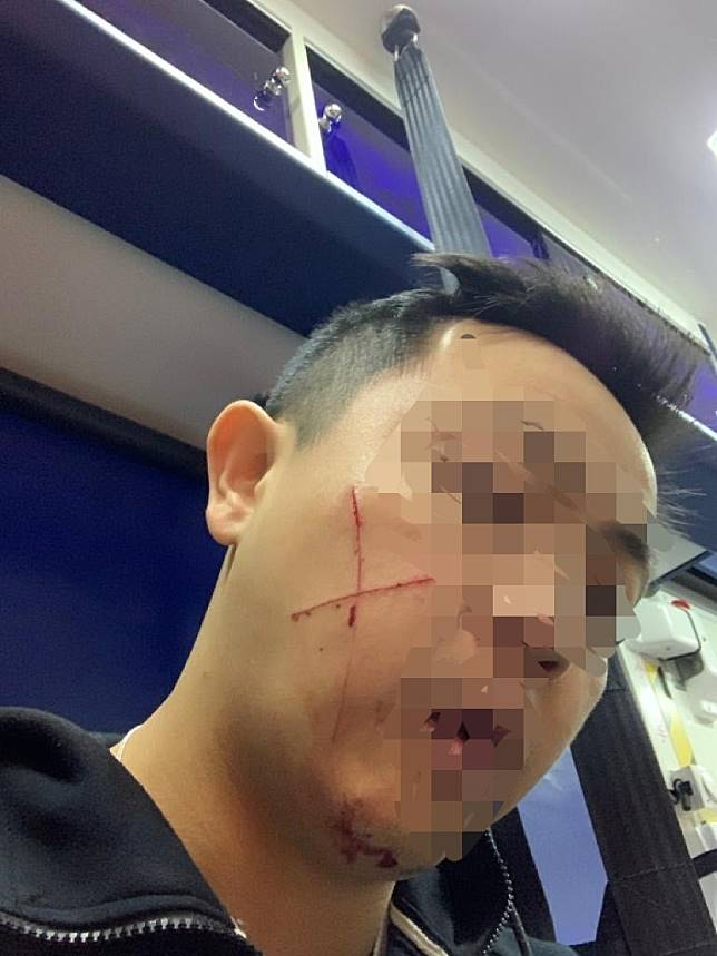 Hong Kong police sergeant slashed across face with razor during arrest of suspect