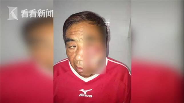 男子臉部被蚊子叮咬了一口,他伸手抓癢卻臉部流膿還皮膚壞死。(圖/翻攝自看看新聞)