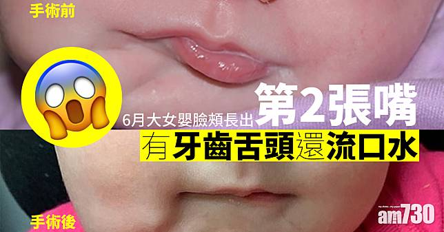 6月大女嬰臉頰長出第2張嘴 有牙齒舌頭還流口水