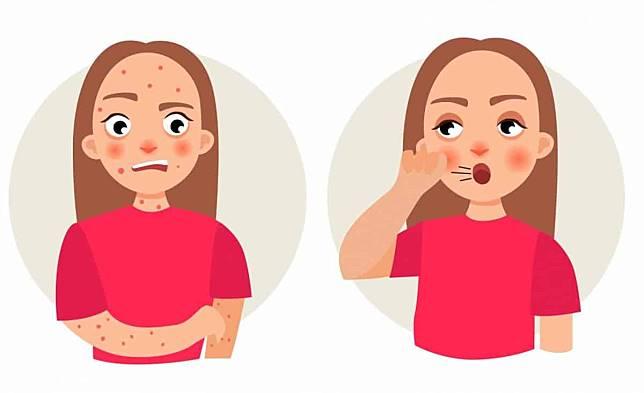 濕疹和食物過敏有關?測了才知道