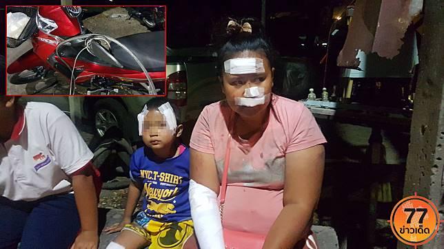 สาววัย 22 ขี่จักรยานยนต์พาครอบครัวออกไปซื้อข้าว ขากลับถูกสายเคเบิ้ลเกี่ยวคอจนรถล้มเจ็บ
