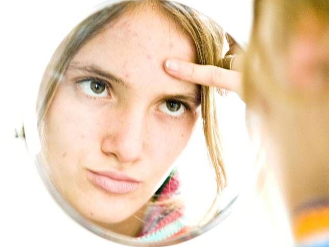 Punya Acne-Prone Skin? Gunakan Skincare Mengandung Green Tea Supaya Enggak Mudah Berjerawat!