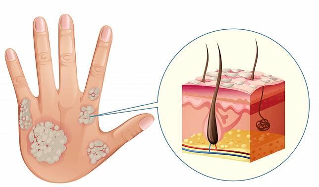 不可不知!乾癬的原因症狀與治療方法