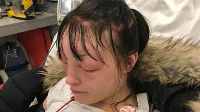 Wajah wanita ini langsung tak bisa dikenali lagi setelah menggunakan pewarna rambut sendiri. (Foto: Deadline News)