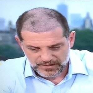 9 Pesepak Bola yang Melakukan Operasi Rambut, Lihat Perubahannya