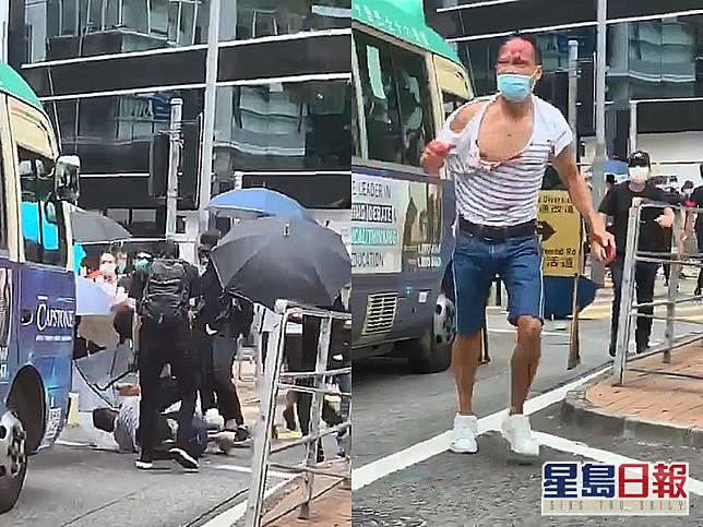 律師陳子遷被「私了」。網圖