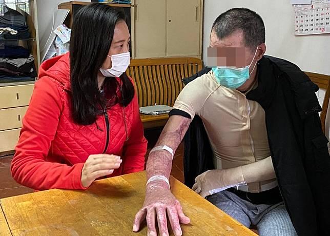 葛珮帆指事主仍需穿壓力衣,避免黏合及傷口加劇。