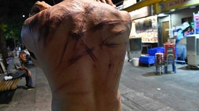 青年背部傷痕纍纍。