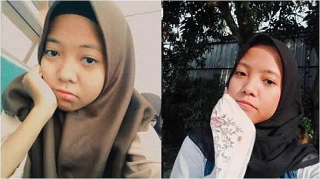 Berkaca dari Kisah Si Kembar yang Terpisah Nadya dan Nabila, Ini Beda Kembar Identik dan Fraternal