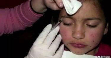 「兒童選美比賽」母親竟對8歲女兒打肉毒!別讓大人的審美觀害了小孩