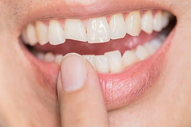 นอนกัดฟัน แบบไม่รู้ตัว