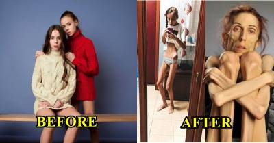 Ngây thơ nghe lời công ty người mẫu, 2 cô gái lâm vào cảnh chán ăn, chờ chết