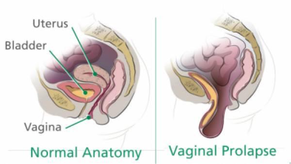 Vaginal Prolapse, Kelainan Organ Panggul yang Turun ke Vagina