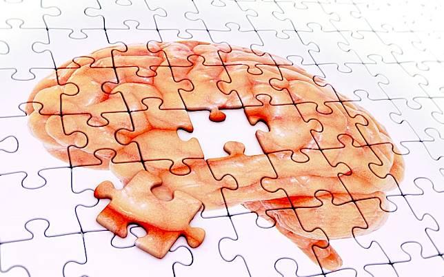 吃這多社交!5招有效預防阿茲海默症