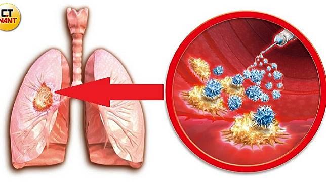 肺癌死亡率連續蟬連10年冠軍,是最致命的癌症。圖/CTWANT授權使用