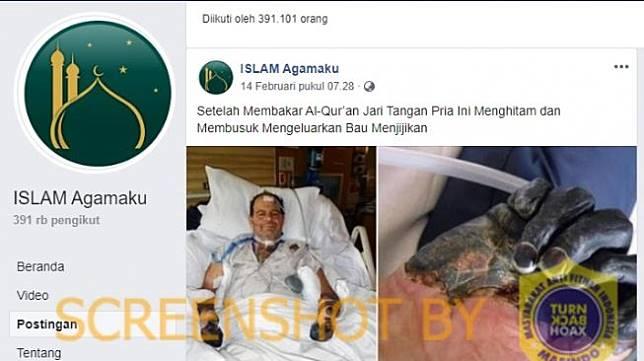 Benarkah Tangan Pria Menghitam dan Busuk Usai Bakar Al Quran? (turnbackhoax)
