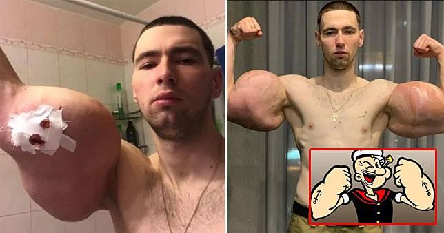 Kirill Tereshin, binaragawan muda yang suntikkan petrolatum ke lengannya supaya terlihat seperti Popeye