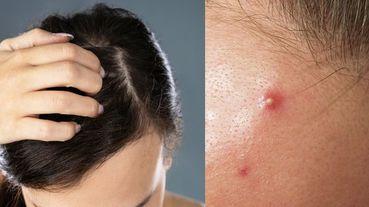 明明有洗髮,但頭皮老是長痘痘、粉刺為什麼?「愛挖鼻孔」居然也是原因之一!
