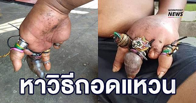 เจ็บปวด! หนุ่มสติไม่ดีใส่แหวนและใช้หนังยางมัดนิ้วจนเลือดไม่เดิน