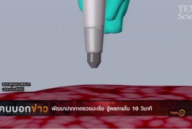 เจ๋ง! พัฒนาปากกาตรวจมะเร็งรู้ผลภายใน 10 วินาที