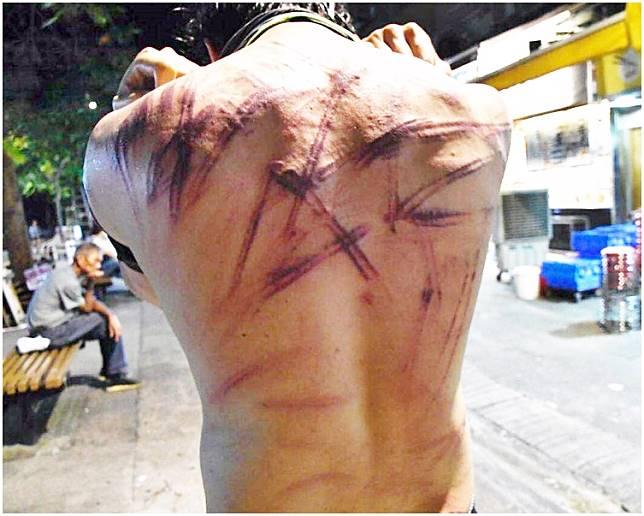 有在襲擊事件中背部受傷的市民展示傷勢。資料圖片