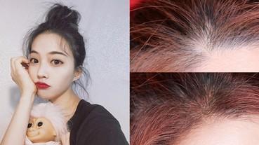 清朝額也有救?超神奇「遮蓋筆」打造自然生髮術!