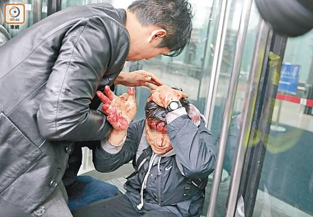 便衣警員被打至頭破血流。