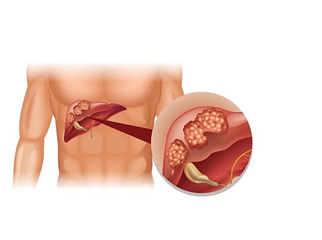 โรคมะเร็งตับ รักษาได้ หากตรวจพบตั้งแต่ระยะเริ่มต้น