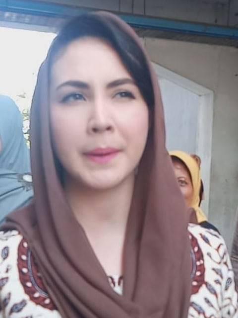 Semangat Arumi Bachsin untuk Dina yang Anaknya Idap Kelainan Wajah