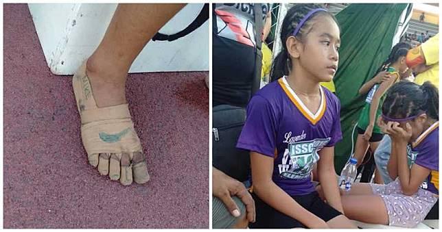 勵志又心酸!11歲女參賽奪三金 「繃帶跑鞋」曝光