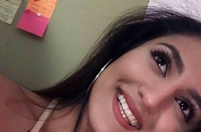 Diserang Tiba-Tiba, Gadis Ini Harus Kehilangan Wajah Cantiknya di Hari Ultah yang ke-21