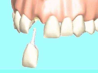 用 剤 歯科 接着