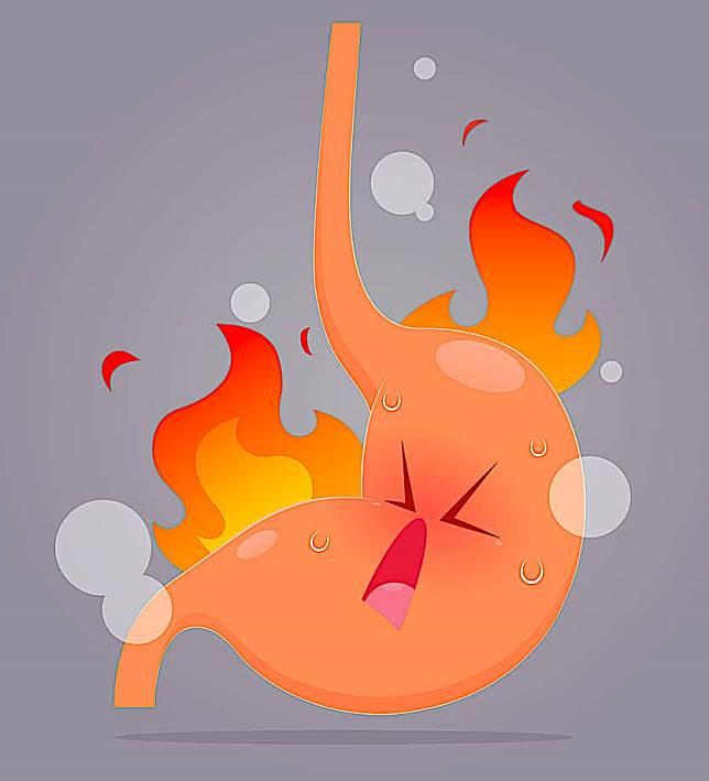 什麼是胃食道逆流?這些居家療法可幫助改善