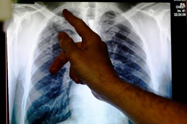 Foto rontgen sinar-X menunjukkan paru-paru yang terinfeksi tuberkulosis./Reuters-Luke MacGregor