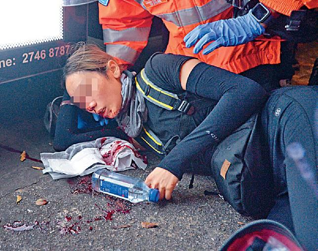 尖沙嘴警署外傷右眼女示威者已出院。資料圖片