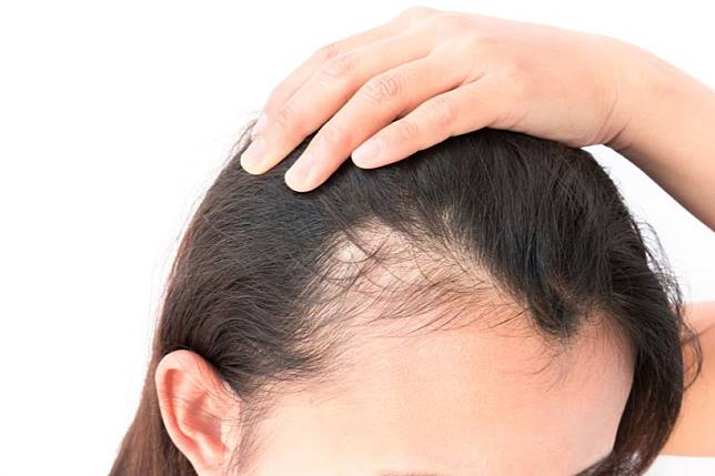 Penyebab Rambut Rontok Parah Banyak Jerawat Di Kepala
