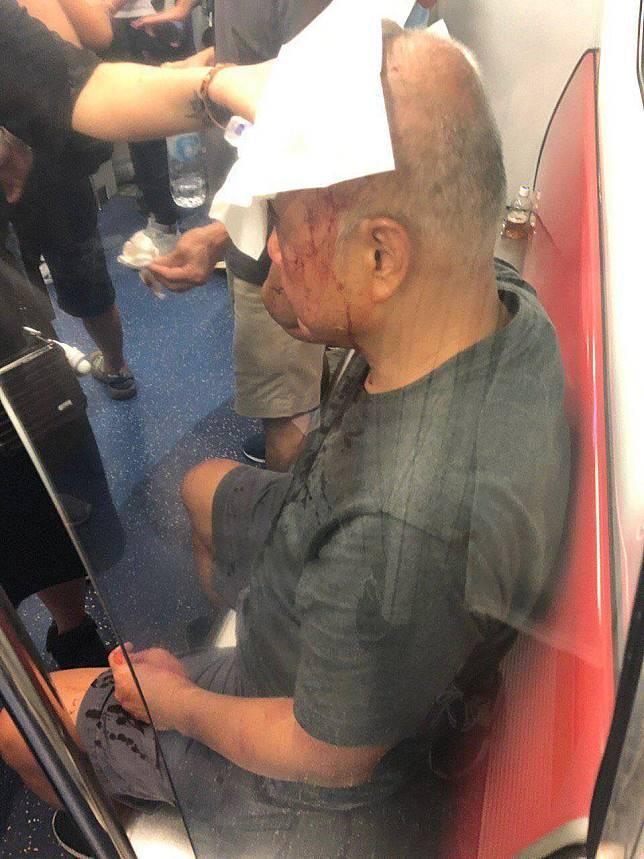 老人受傷。