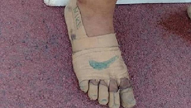 Sepatu perban