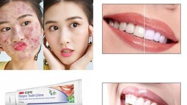含氟牙膏好不好?聽說會致痘痘?從原理、成分去推薦最適合你的牙膏