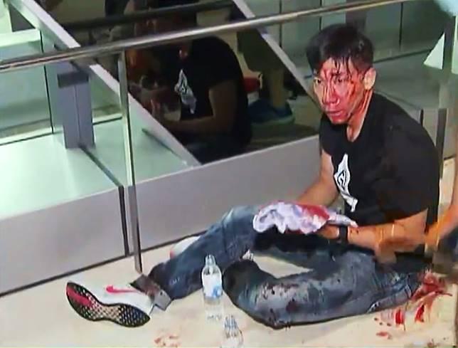 柳俊江受傷。