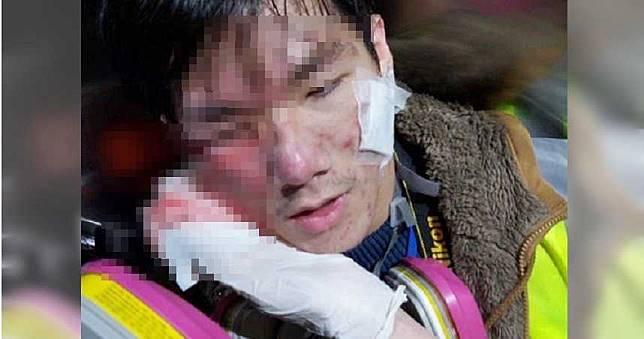 浸大學生記者「顴骨中彈」右眼噴血 急救員怒批:故意瞄準他們