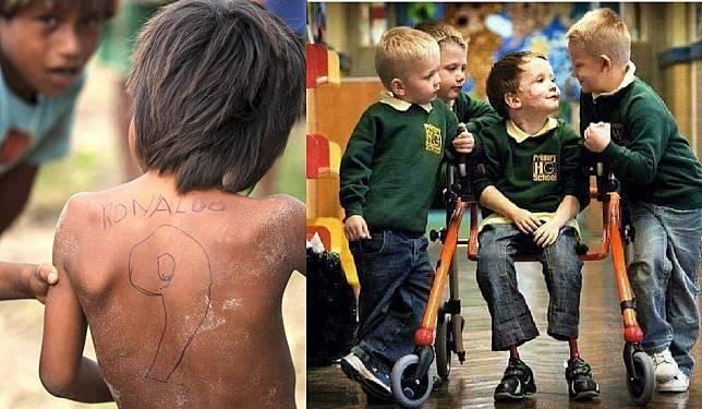 Buat Lo yang Lagi Ngerasa Jadi Orang Paling Malang di Dunia, Coba Lihat 7 Foto Ini