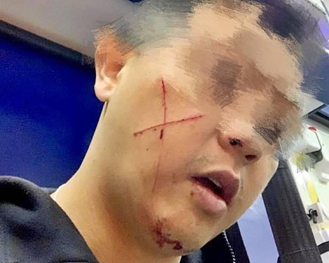 遇襲休班警右邊面有「交叉」狀傷痕。葛珮帆facebook圖片