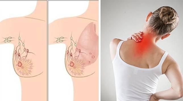 5 สัญญาณเตือนของโรคมะเร็งเต้านม ที่ผู้หญิงจำนวนมากมักไม่สนใจ!