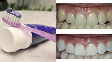 兩星期白4度!美國熱賣紫色 美白牙膏