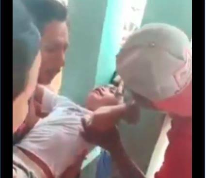 Kepala seorang bocah perempuan terjepit tiang rumah di Dusun Cuwalang, Desa Daditunggal, Kecamatan Ploso, Jombang, Jawa Timur.