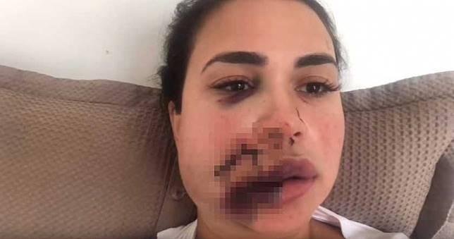 太美被嫉妒!27歲小模遭「酒杯砸臉」噴血 慘縫90針毀容