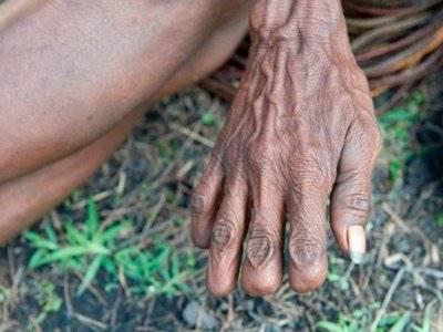 Suku Ini Memotong Ruas Jarinya sebagai Bentuk Kesedihan